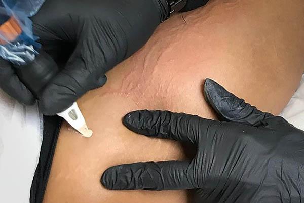 Micropigmentação de Estrias em Santos