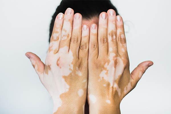 Camuflagem de Vitiligo em Santos
